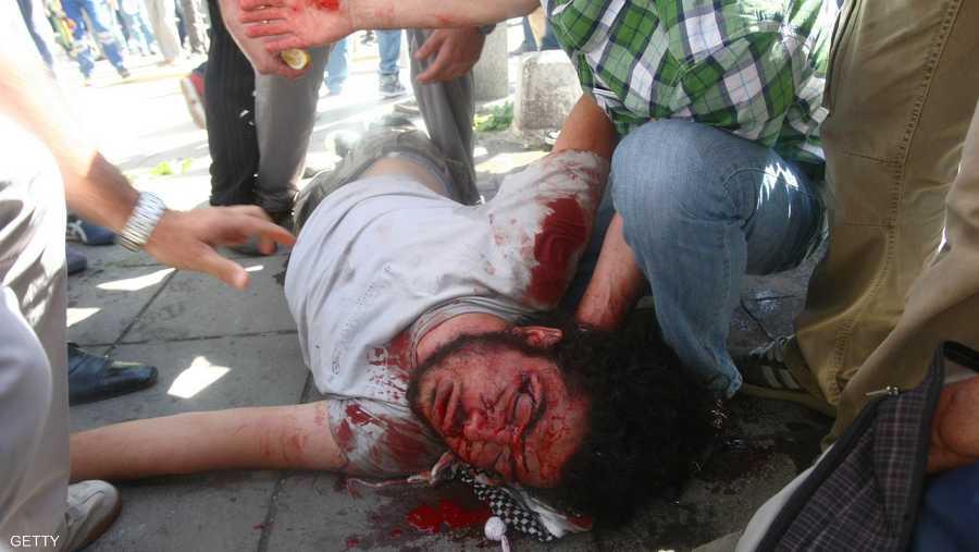 آثار إصابة على أحد المتظاهرين
