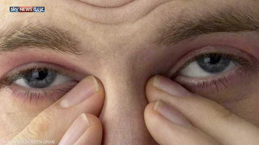 fdbb52b80 انحراف النظر يؤدي إلى العمى التدريجي | أخبار سكاي نيوز عربية
