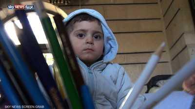بتر الأطراف جزء من مأساة أطفال سوريا