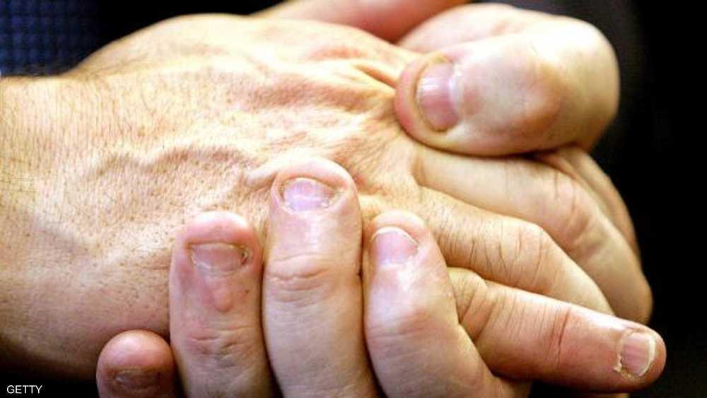 ضعف الأظافر مؤشر على نقص فيتامين B7.