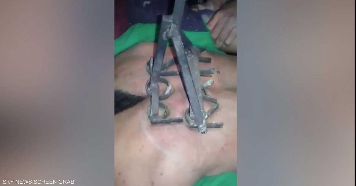 الكيّ عقوبة لصوص البنزين.. فيديو