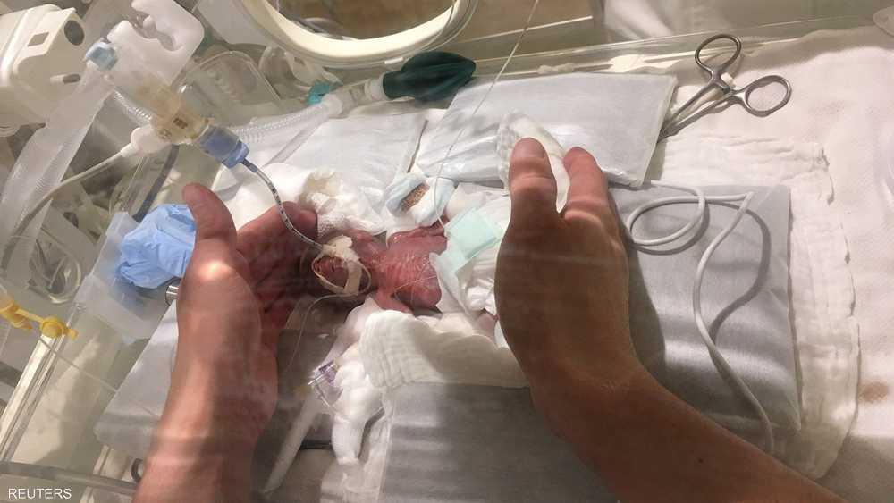 الرضيع خضع لرعاية طبية مكثفة