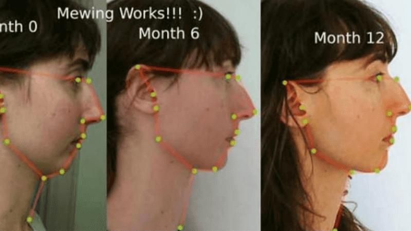 تقنية لتغيير شكل الوجه بواسطة اللسان