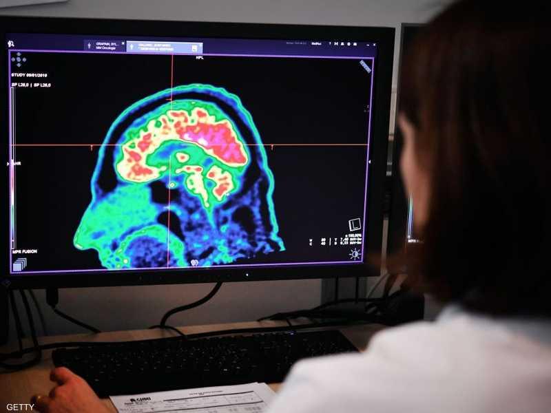 تطور الدماغ يظل حتى بداية الثلاثينات من العمر