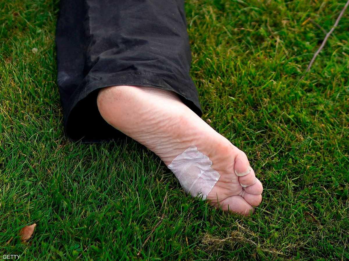 الرجل أصيب بجرح بسيط في البداية لكنه فقد ساقه - أرشيفية
