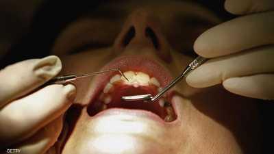 أبحاث تربط بين صحة الفم والقدرات المعرفية لدى الإنسان