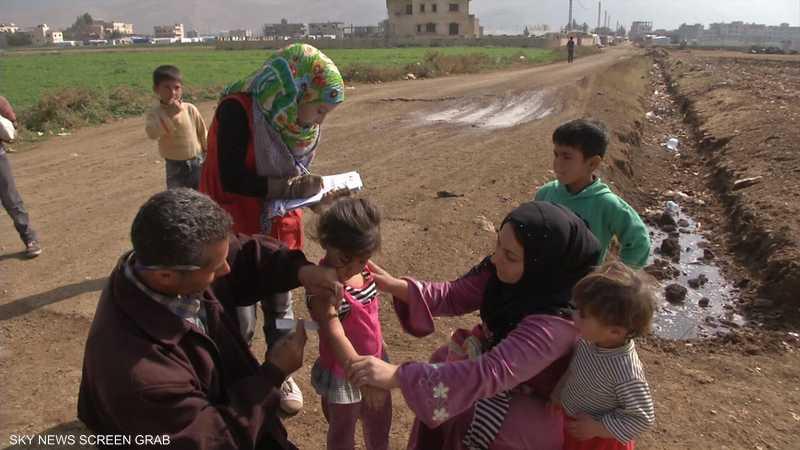 شلل الأطفال.. معركة التصدي له لا تزال مستمرة