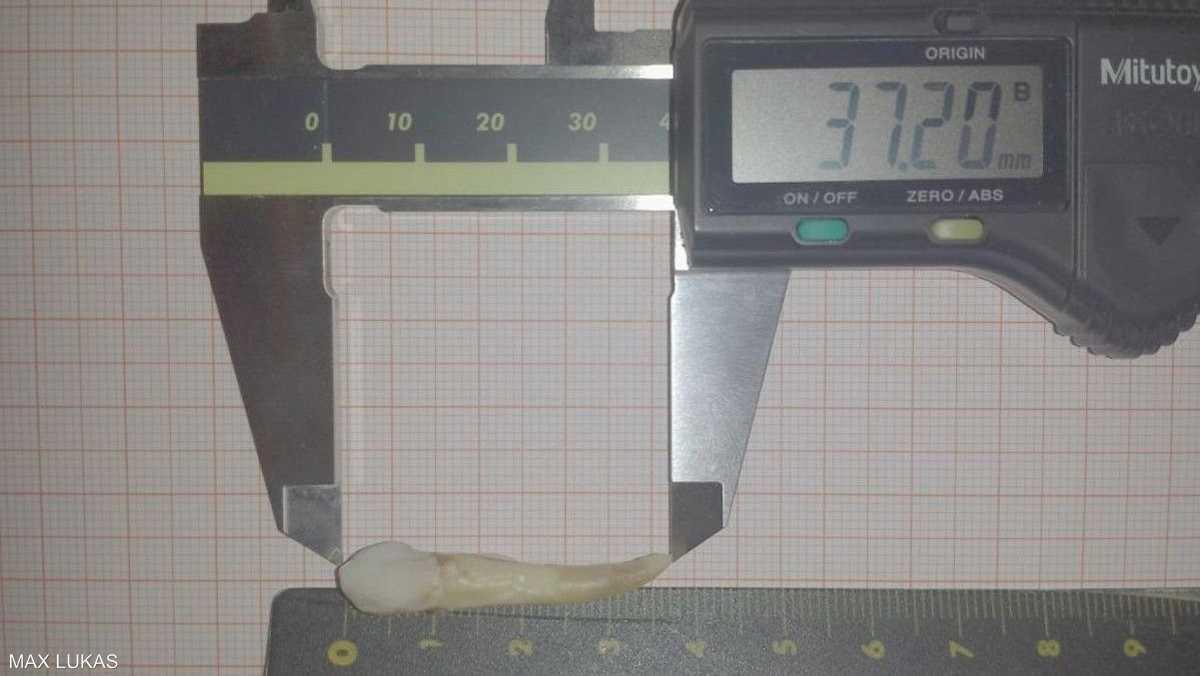 طول السن بلغ 3.72 سنتيمتر