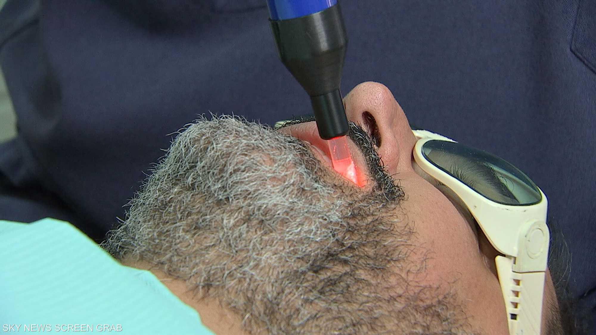الليزر علاج لآلام مفصل الفك الصدغي
