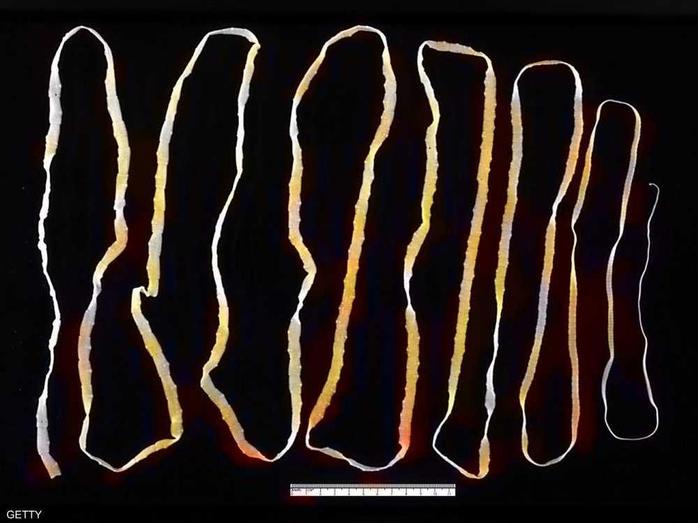 دودة شريطية تم استخراجها من جسم إنسان
