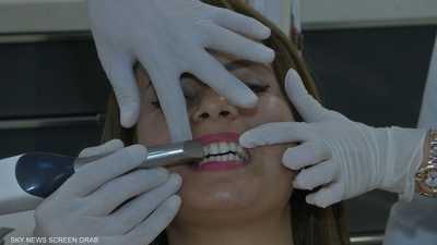 خبراء يحذرون من خطورة تبييض الأسنان أثناء الحمل