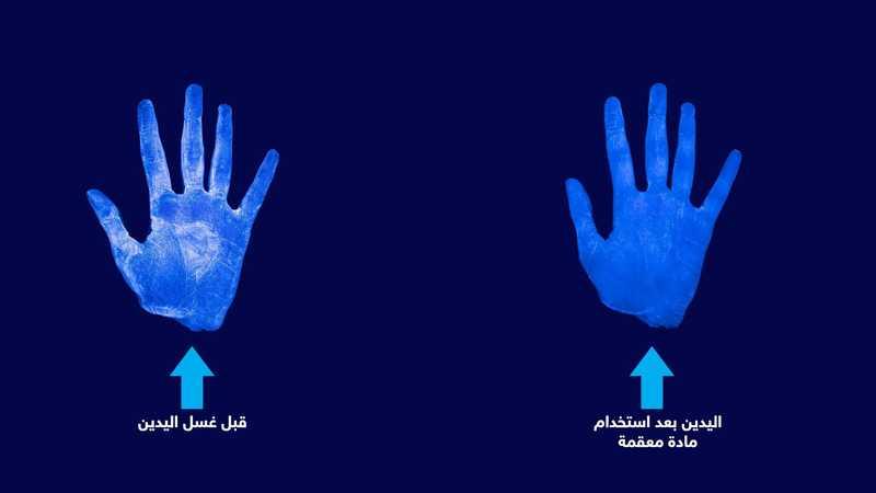 الفرق في اليد بعد استخدام مادة معقمة