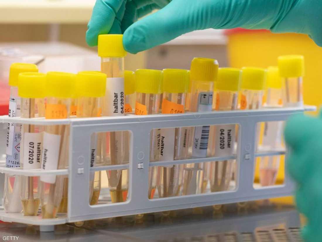 المريض بكوفيد 19 لا ينشر العدوى بعد 10 أيام وفقا للدراسة