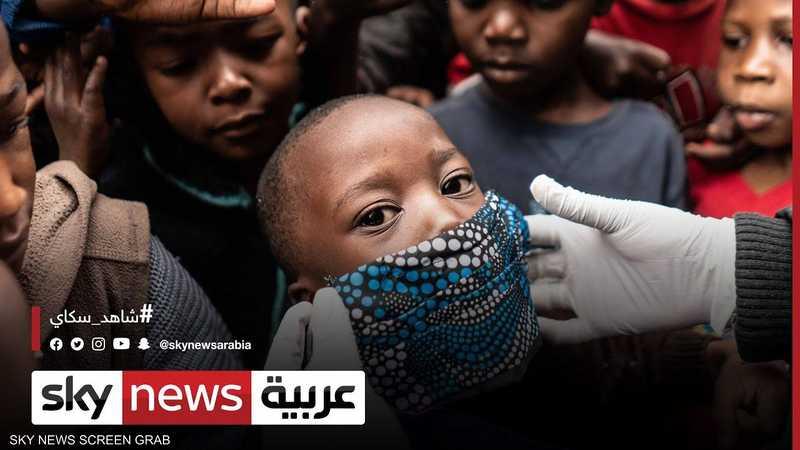 أزمة كورونا تعمق مأساة الجوع وسوء التغذية العالمي