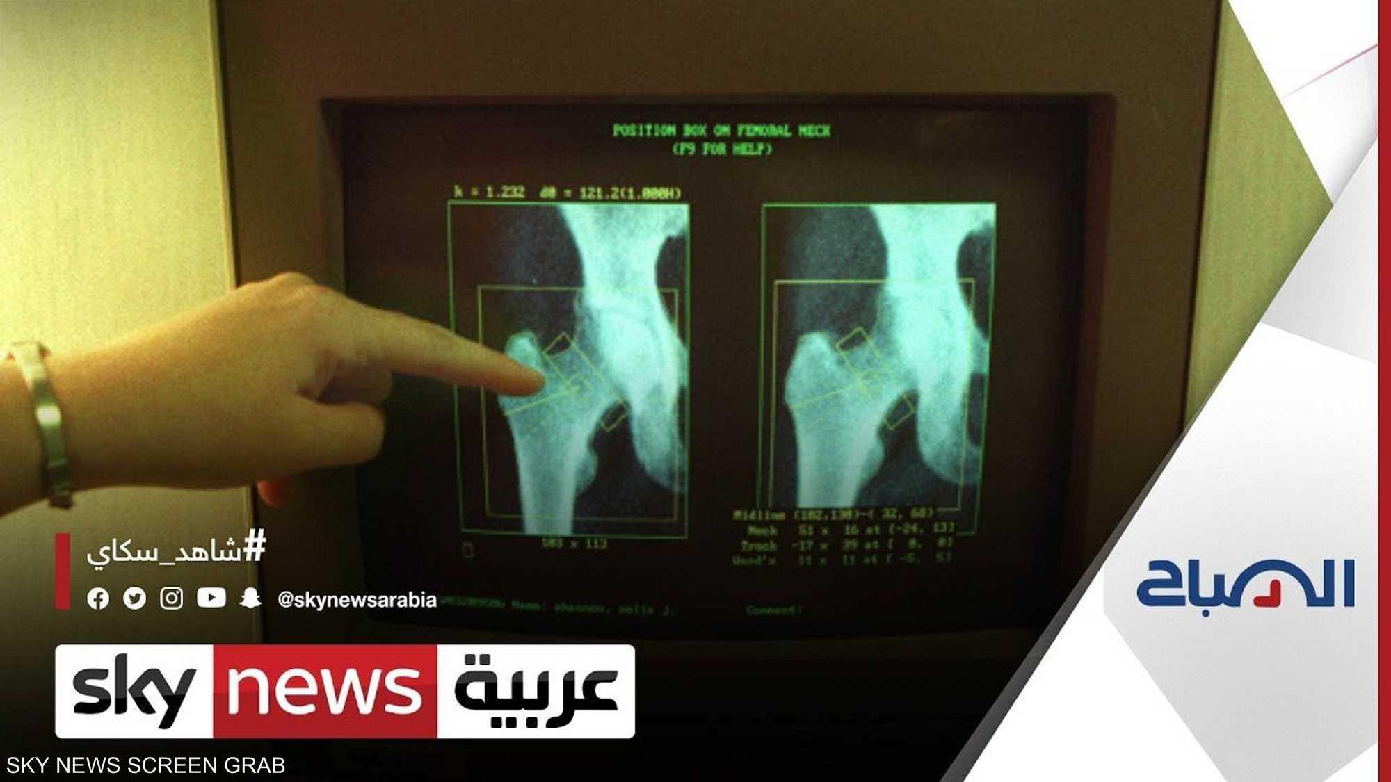 ما العلاقة بين فيتامين دال وهشاشة العظام؟