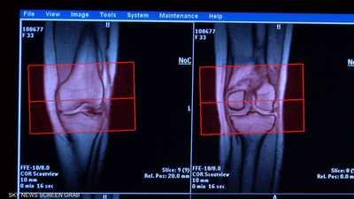 إصابات الركبة تتنوع بين الخفيفة والمتوسطة والحادة