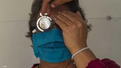 رصد أعراض جديدة لفيروس كورونا.. كلمة السر في العينين