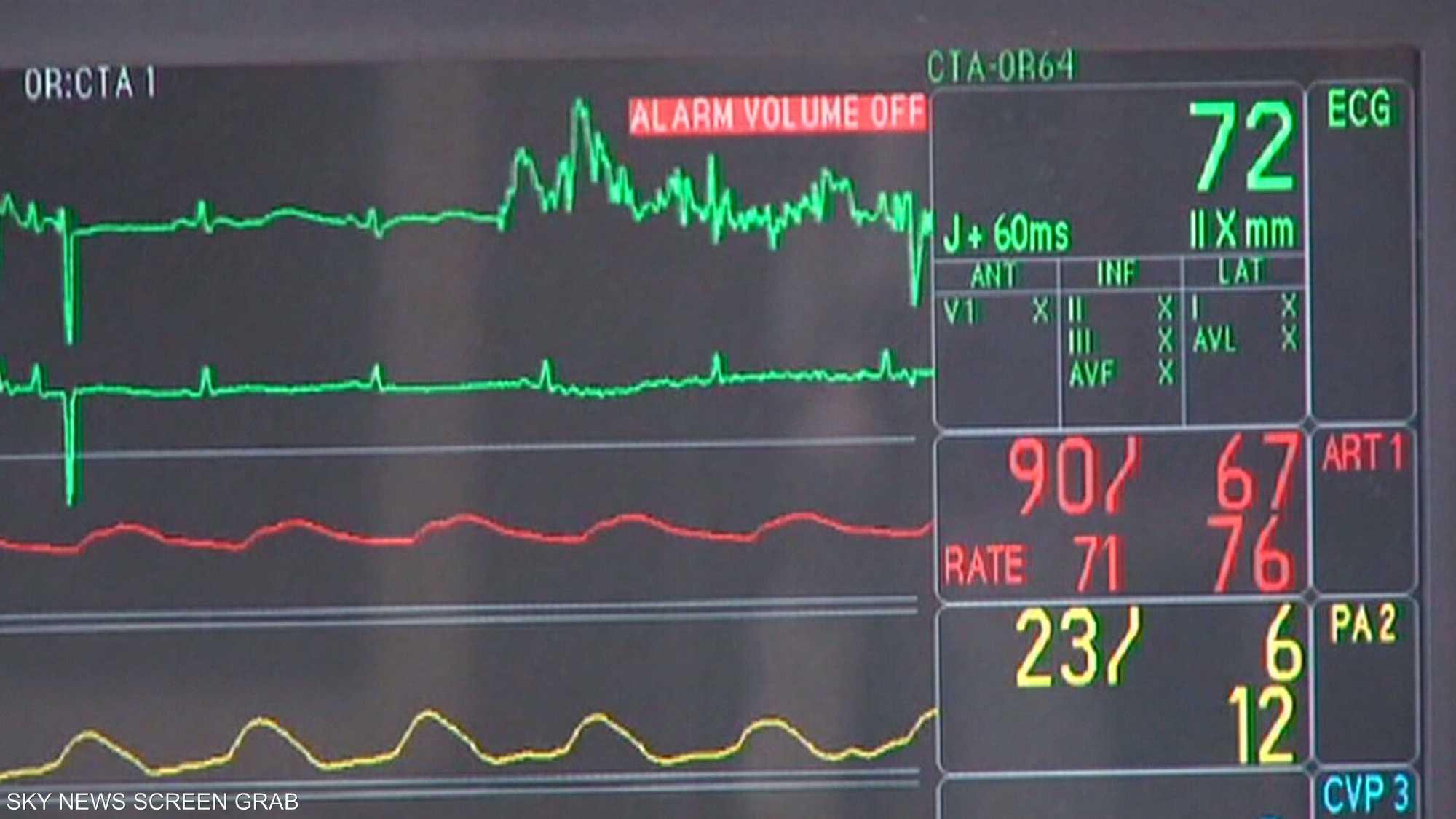 ارتفاع ضغط الدم قد يؤدي لنوبة قلبية تهدد الحياة