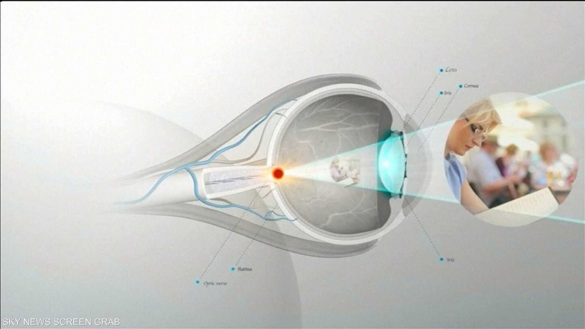 دراسة: ارتباط كبير بين فقدان البصر وتلوث الهواء