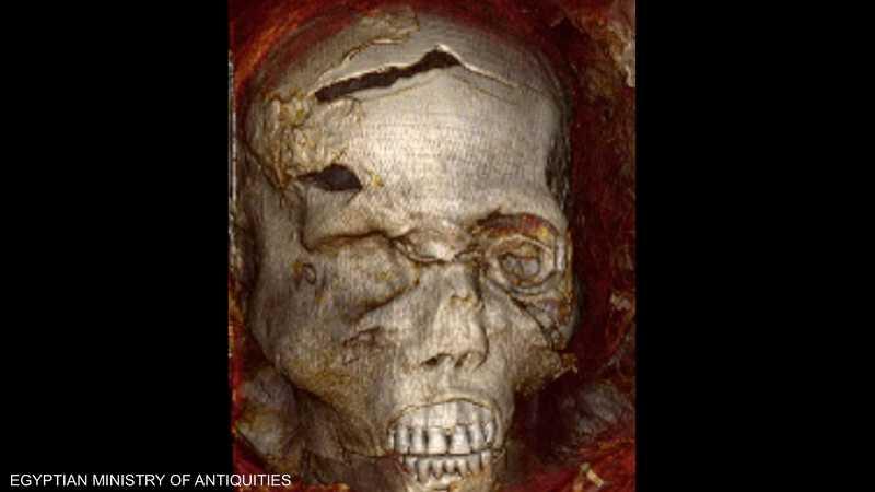 نتيجة فحص الملك سقنن رع تاعا الثاني بالأشعة المقطعية