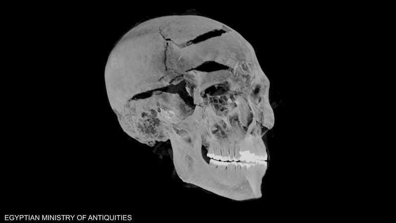 الأشعة توضح كسورا في جمجمة الملك المصري