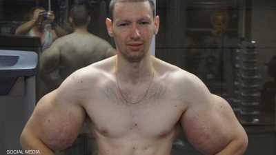 """""""بوباي روسيا"""": أشعر بالغباء بعد """"عملية العضلات"""""""