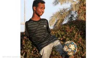 سوداني يحارب الإعاقة بإبداع كروي مبهر