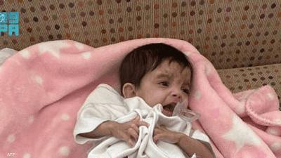 الرياض.. عملية جراحية لفصل توأم طفيلي يمني