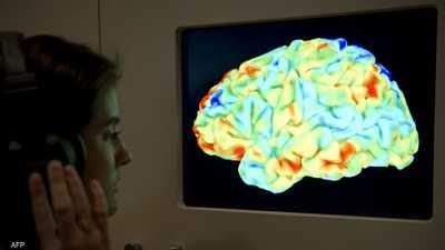 أرشيفية.. صورة دماغ بشري