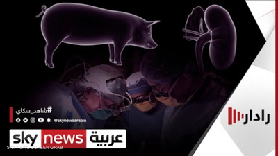 جراحون ينجحون باختبار زرع كلية خنزير في مريضة من البشر