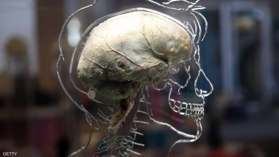 الجهاز يمكنه تغذية المعلومات مباشرة إلى دماغ الشخص